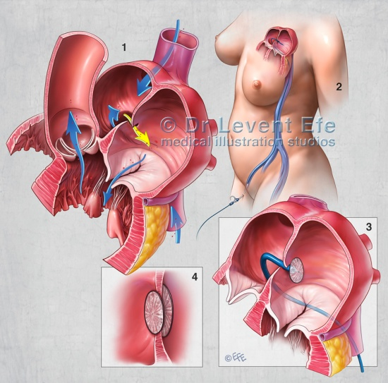 Medical illustration depicting minimally invasive closure of Patent foramen ovale (PFO). 1. Blood flow between the chambers of the heart. Yellow arrow depicts blood flow through the Foramen ovale. 2. Catheterization 3. Septal occluder closing the foramen. 4. Circular discs covering the hole on both sides.